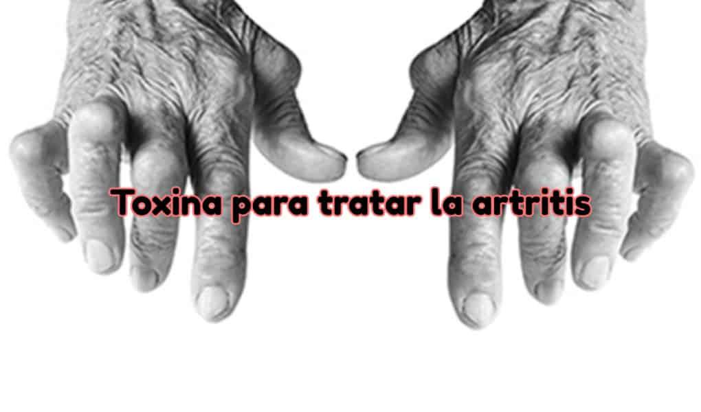 tratar la artritis con toxina