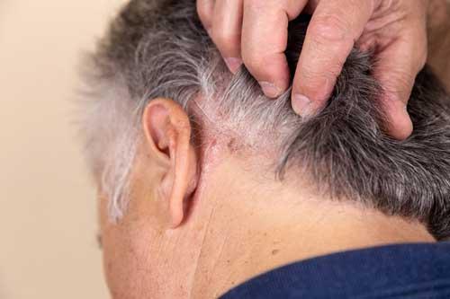costra de dermatitis en cuello